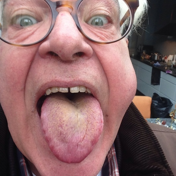 2014  - Struikel je over je tong het ziekenhuis in
